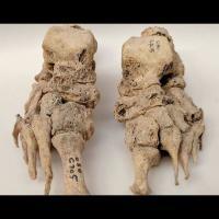 Défomations caractéristiques de la lèpre sur un des 90 squelettes ayant permis de démontrer une origine européenne de la maladie - Photo: Dorthe Dangvard Pedersen