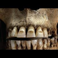 Dents limées sur un squelette viking - Photo: British Museum