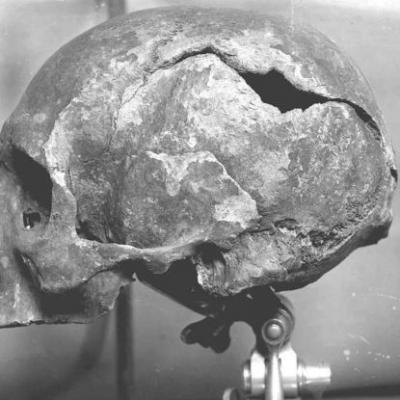Ecosse - Photographie de 1925 du crâne découvert dans une boîte en bois à la Cathédrale St Magnus de Kirkwall - Photo: Archive des Orcades