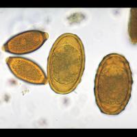 Œufs de deux nématodes à l'examen de selles Trichuris trichiura à gauche et Ascaris lumbricoides  à droite à gauche et ascaris lumbricoides à droite
